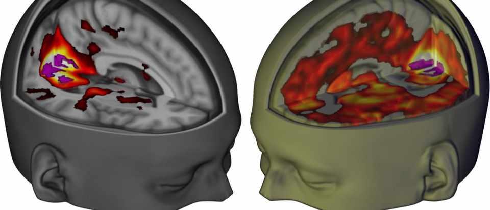Landmark Study Reveals The Effect Of Lsd On The Brain Bbc Science