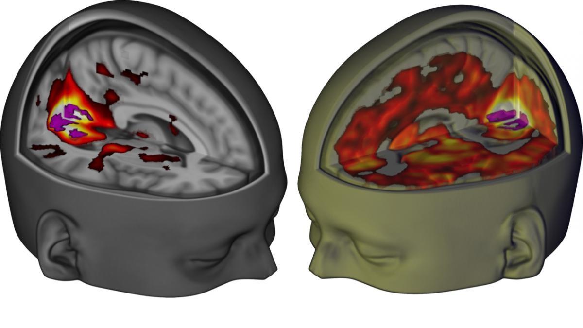 Landmark study reveals the effect of LSD on the brain