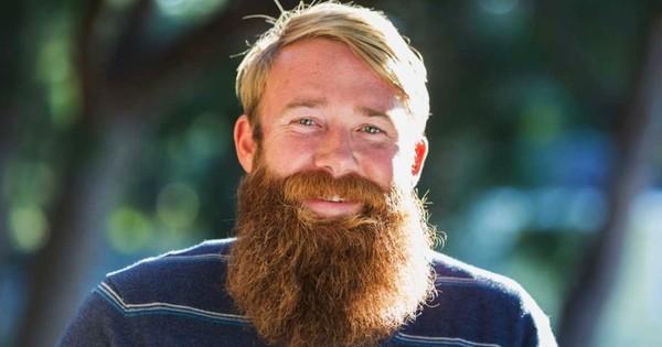 Why do so many non-ginger men have ginger beards?