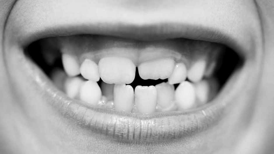 Why do gums recede? © Getty Images