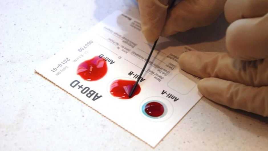 Why is type O the most common blood type? © iStock