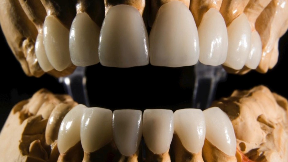 How hard is tooth enamel compared to other materials? © Getty Images