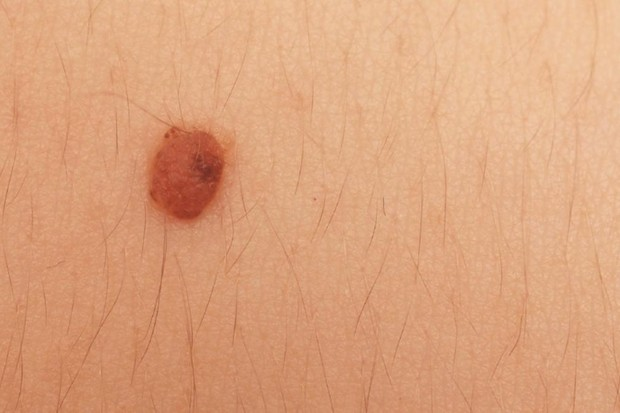 Why do we have moles on our skin? © iStock
