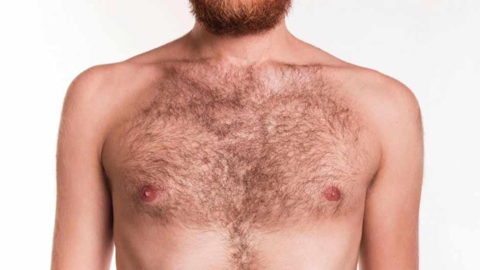 Why are some people so hairy? © iStock