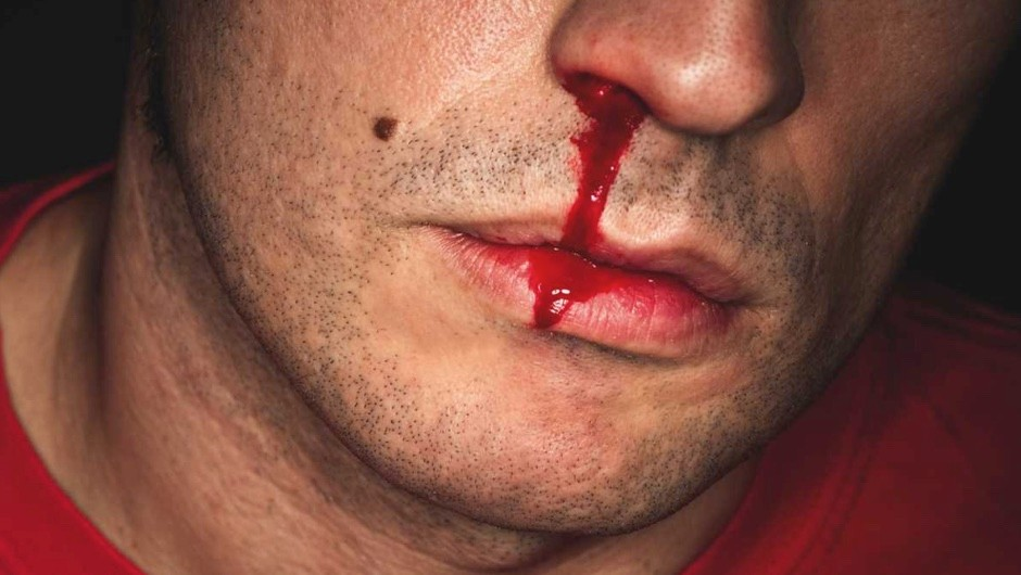 Can you die from a nosebleed? © ISTOCK