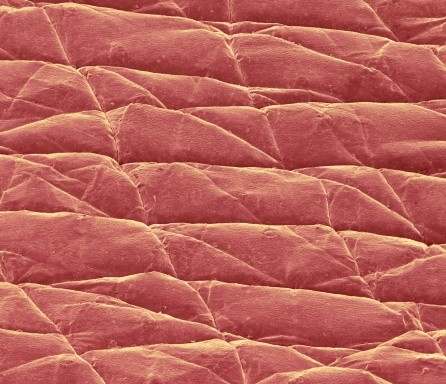 Coloured scanning electron micrograph (SEM) of the surface of the skin (red) of a 43-year-old © Science Photo Library/Getty Images