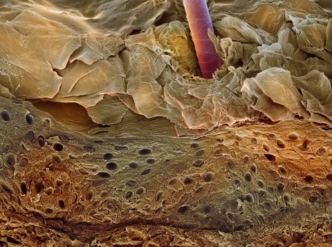 Coloured scanning electron micrograph (SEM) of a section through human skin. The living layer of the epidermis (dark brown) is called the Malpighian layer, which contains cells called melanocytes © Science Photo Library/Getty Images