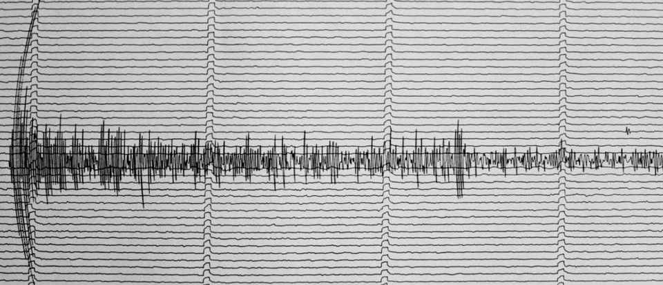 How are the seismometers that measure earthquakes calibrated? © Getty Images