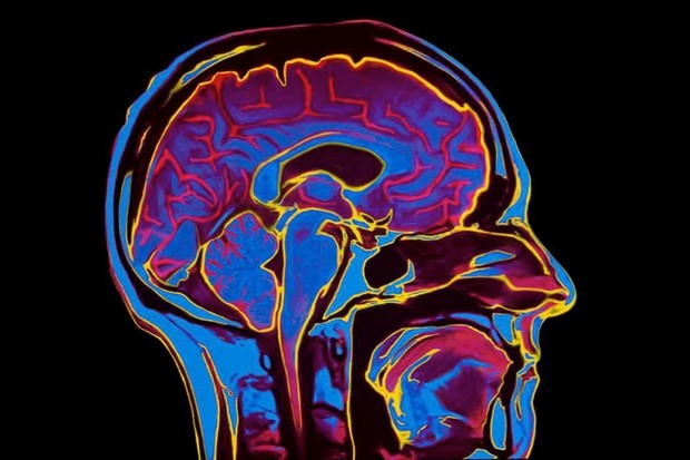 Five incredible advances in brain disease treatment © Getty Images