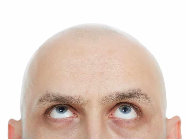 Why do old men go bald, but get hairy nostrils? - BBC