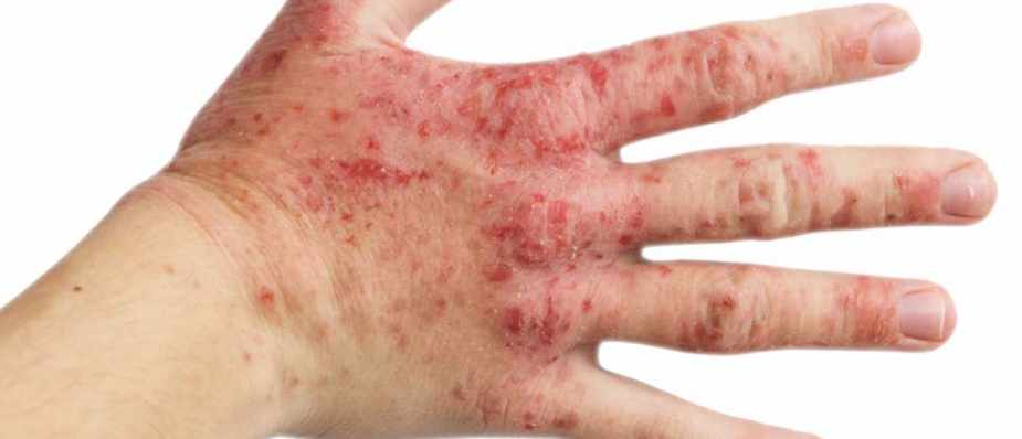 What causes eczema? © Getty Images
