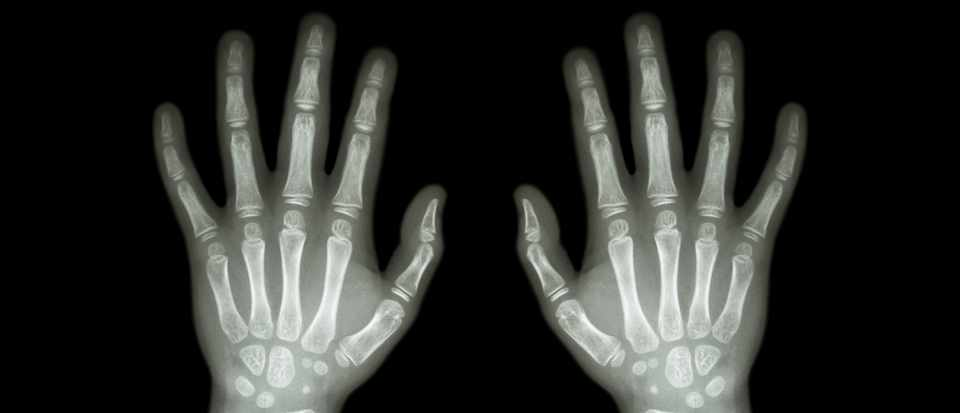 When will we have real X-ray specs? © Getty Images