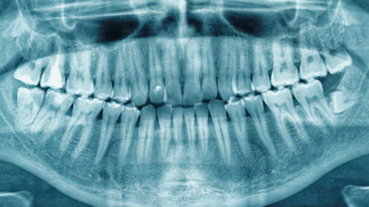 Why do we have wisdom teeth? © Getty Images