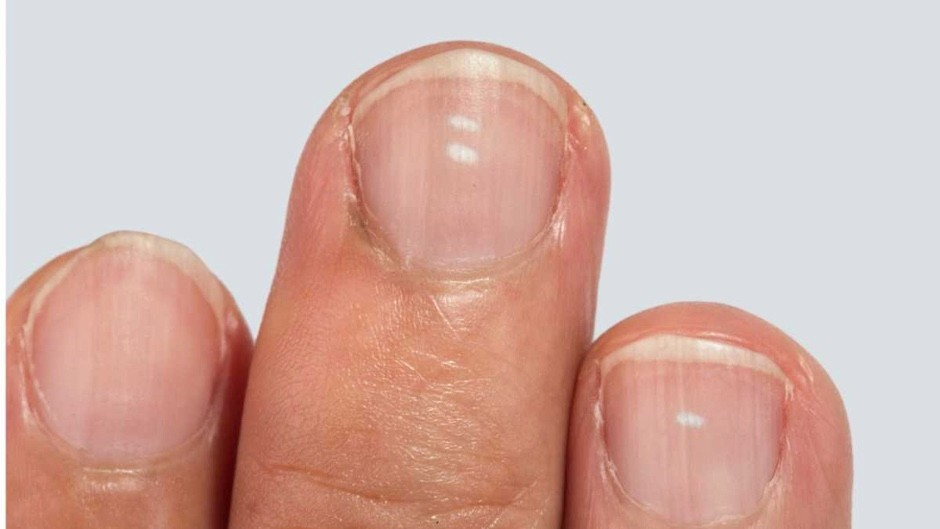 Are white spots on your fingernails really sign of calcium deficiency? © Getty Images