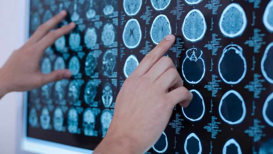 Could we see brain scanners used in criminal cases? © Getty Images see brain scanners used in criminal cases? © Getty Images