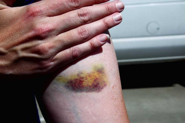 What causes the diverse colouring of bruises? © Getty Images