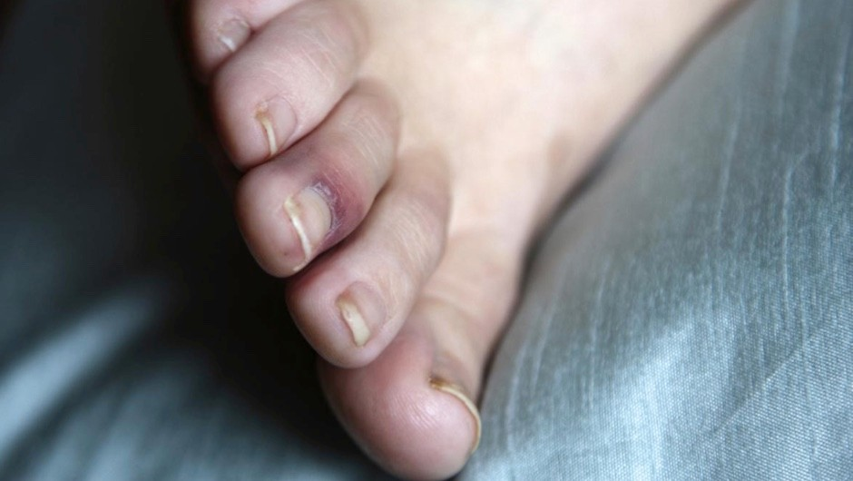 Why does stubbing your toe hurt so much? © iStock