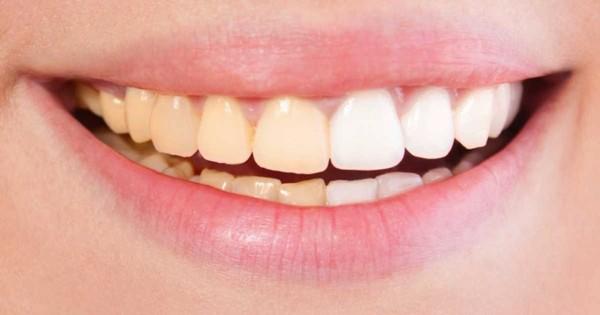 Are Yellow Teeth Stronger Science Focus Bbc Focus Magazine