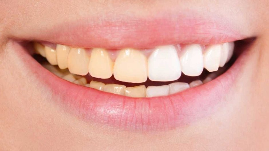 photograph about Tooth Shade Chart Printable identified as Are yellow tooth much better? - BBC Science Awareness Journal