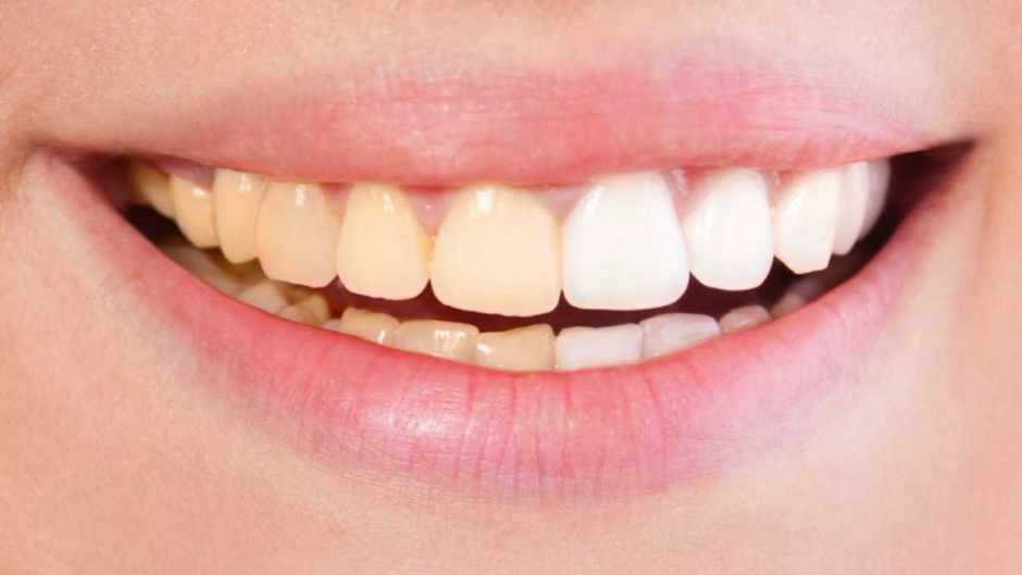 Natural Color Of Teeth Yellow