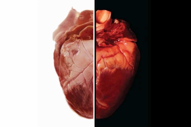 The human heart (left) and pig heart (right) share a strikingly similar anatomy © Getty Images