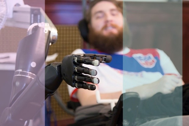 As part of a study at the University of Pittsburgh, Nathan Copeland, a quadriplegic, has had electrodes implanted in his brain. These communicate with a computer to give him a sense of touch via a robotic hand.