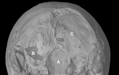 Micro-CT scan of the Richard III's skull showing areas that were sliced off in battle © University of Leicester