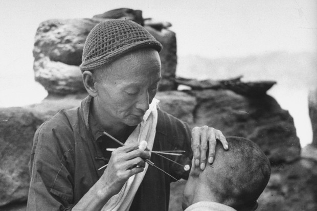 A Chinese man performing acupuncture on a man's ear © Carl Mydans/The LIFE Picture Collection/Getty Images