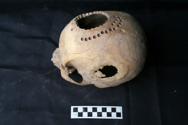 Trepanned skull found in Peru © Danielle Kurin/University of California - Santa Barbara