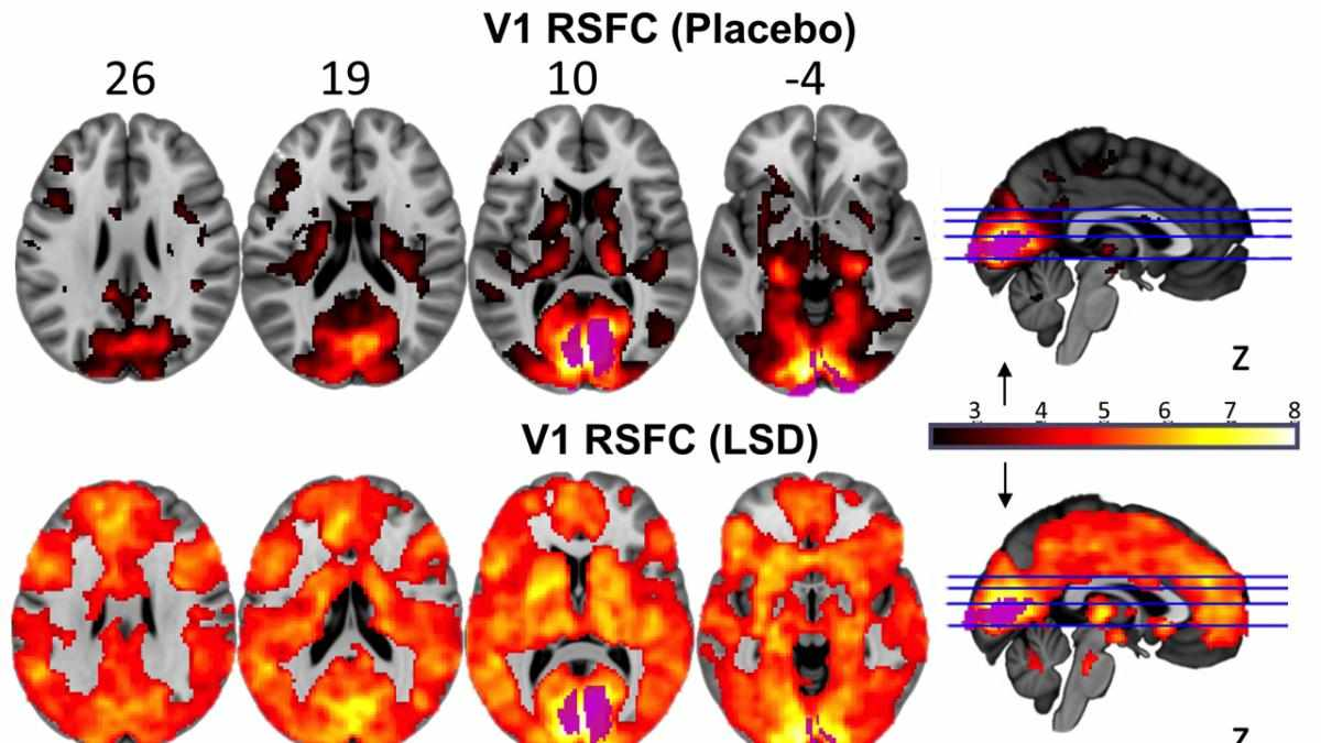 This image shows the marked difference in brain activity when the under the influence of LSD (© Imperial/Beckley Foundation)