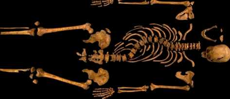 The skeleton of Richard III, showing clear signs of scoliosis © University of Leicester