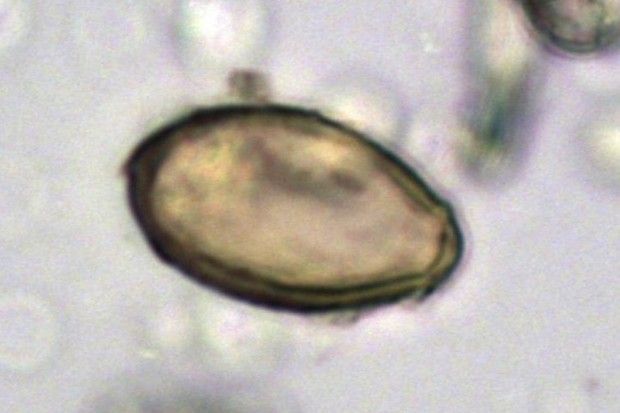 Egg of Chinese liver fluke discovered in the latrine at Xuanquanzhi, viewed using microscopy. Dimensions 29 x 16 micrometers. The Journal of Archaeological Science: Reports., CC BY-SA