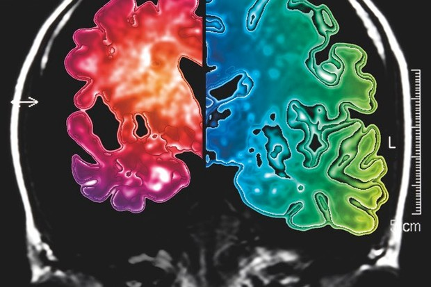 In this image of an Alzheimer's brain (left) compared with a normal brain (right), the shrinkage is clearly visible © Getty