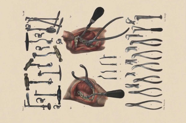 new 140 tooth extraction & dental instruments. Wellcome Library, London
