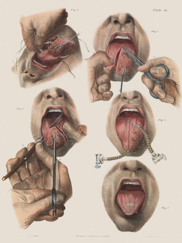 p110 cancer of the tongue