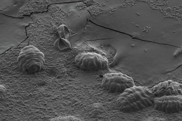 The little lumps seen here are tardigrades. When they dry out, they retract their heads and legs © T C Boothby
