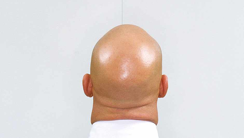 Why are bald heads so shiny, when the skin elsewhere on your body isn't? © Getty images