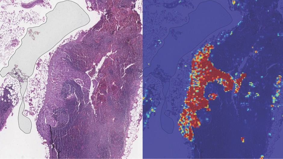 The AI was shown a microscope slide containing lymph nodes (left), and it was able to correctly identify the tumorous region by highlighting it  in red (right) © Naval Medical Center San Diego