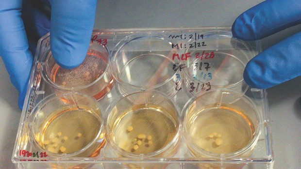 Tiny Neanderthalised mini-brains, grown in Alysson Muotri's lab © Alysson Muotri