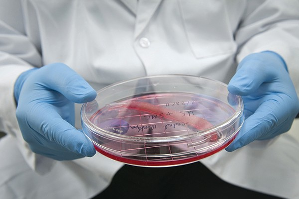 Scientists reconstructed urethras using the patients' own cells @ Wake Forest University School of Medicine