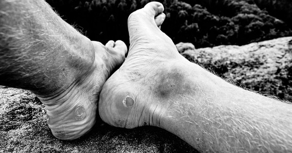 Why do we get blisters?
