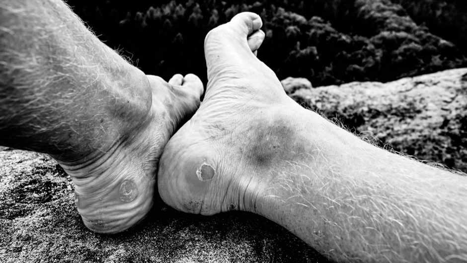 Why do we get blisters. © Getty Images