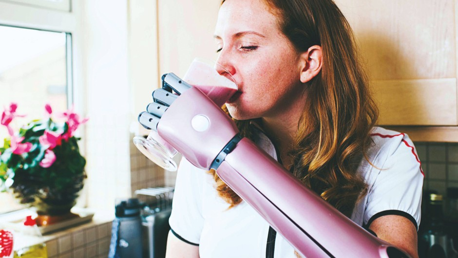 2018's game-changing tech © Open Bionics