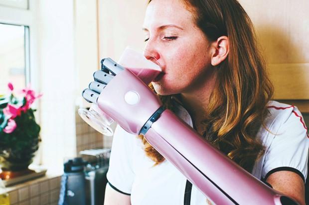 2018's game-changing tech © Open Bionics