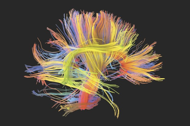White matter fibres, as seen in this 3D scan, coordinate the flow of information between different areas of the brain. Flaws in white matter have been linked to psychopathic traits © Getty Images