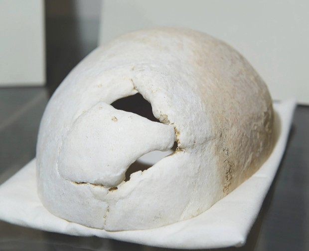 Gage's skull is on display in Harvard Medical School. The hole is where the iron rod exited through the top of his skull © Alamy