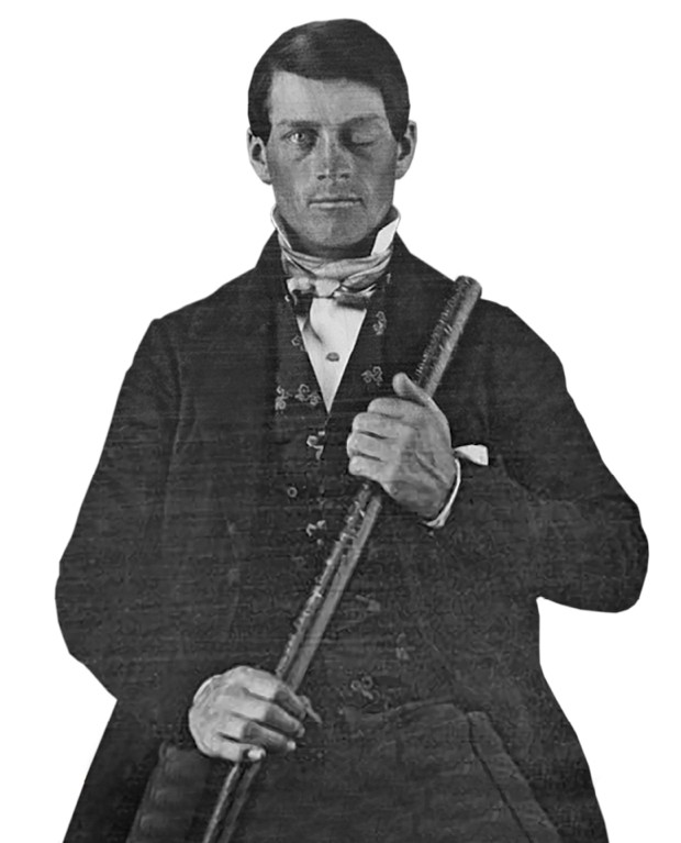 Phineas Gage survived after an iron rod (held by Gage in this image) was blasted through his brain © Originally from the collection of Jack and Beverly Wilgus, and now in the Warren Anatomical Museum, Harvard Medical School. (Attribution, GFDL or CC BY-SA 3.0)