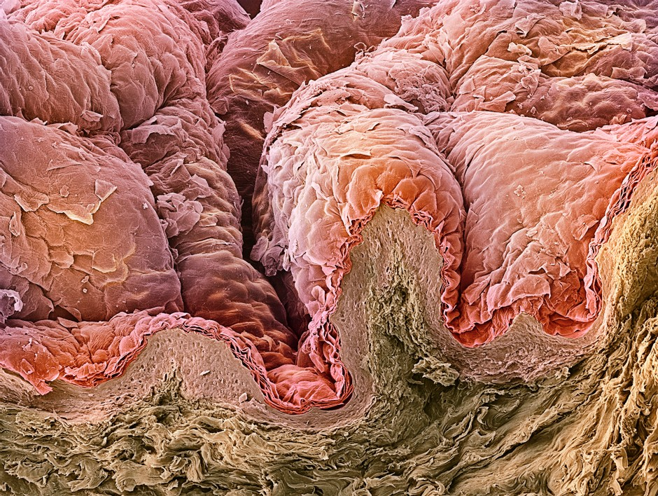 The outer layer of the skin, the epidermis, is formed from overlapping layers of skin cells © Getty Images
