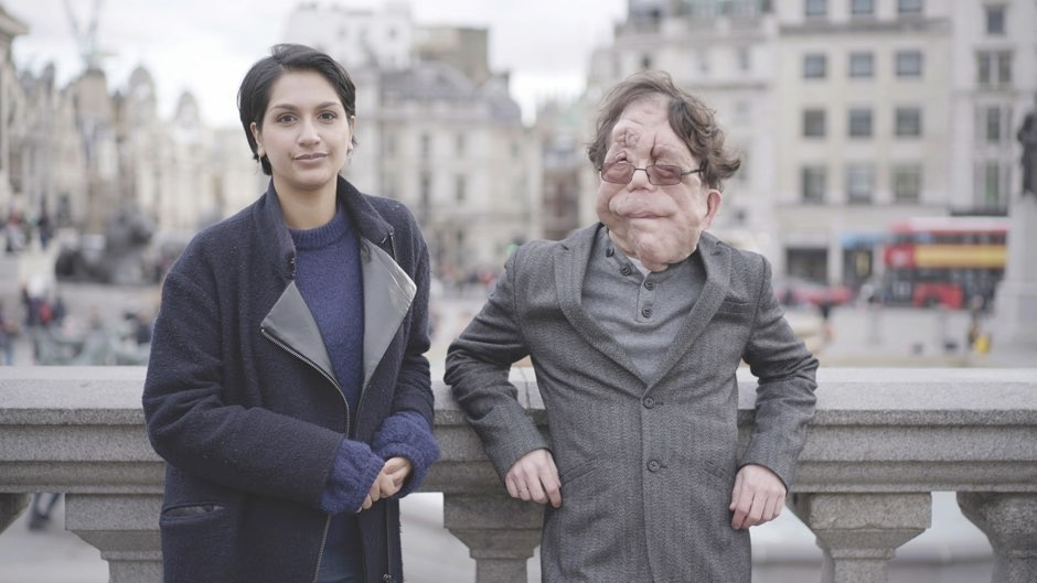 Disability rights activist Adam Pearson on the lasting effect of eugenics