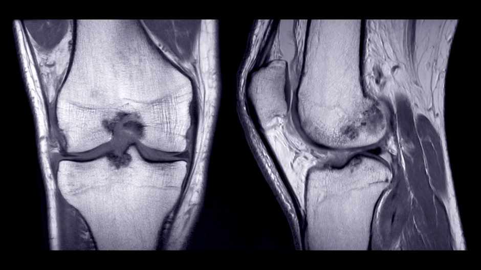 Salamander-like cartilage regrowth sheds light why hip and knee injuries take longer to heal © Getty Images